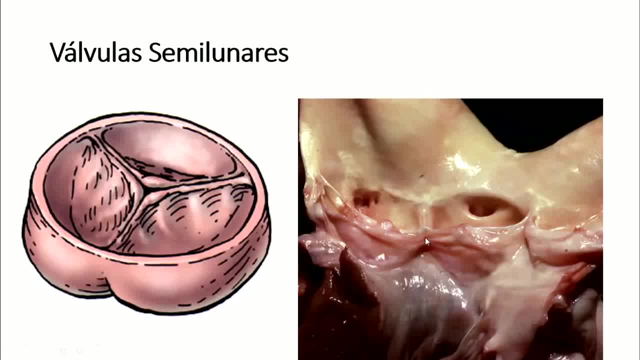 Microclase 3 Unidad IV Configuración Interna del Corazón Med. Carlos Andres Garcia